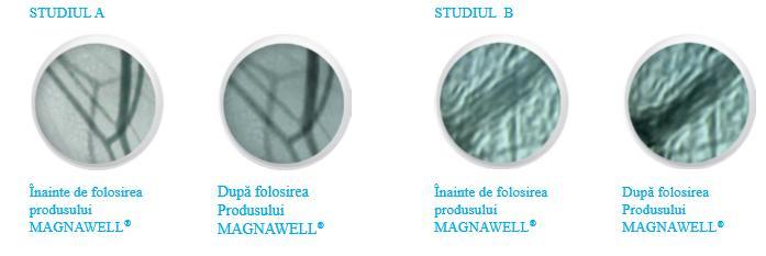 energetix-romania-studiu-magnawell-cu fir de argint